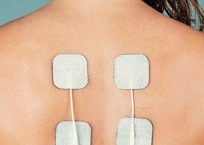 Elektrostimuliacijos procedūros